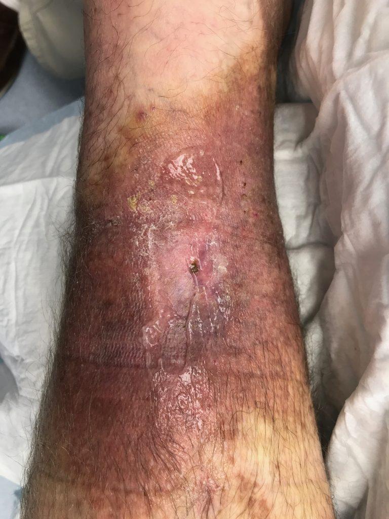 Venous Ulcer Treatment  Venous Ulcers